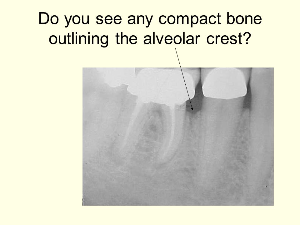 Do you see any compact bone outlining the alveolar crest
