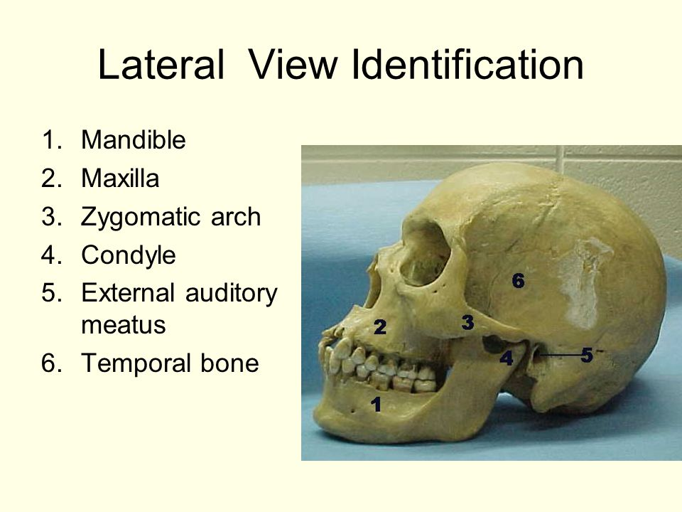Lateral View Identification