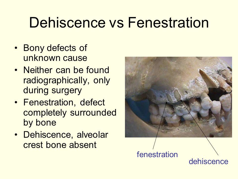 Dehiscence vs Fenestration
