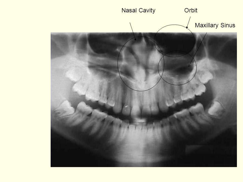 Nasal Cavity Orbit Maxillary Sinus