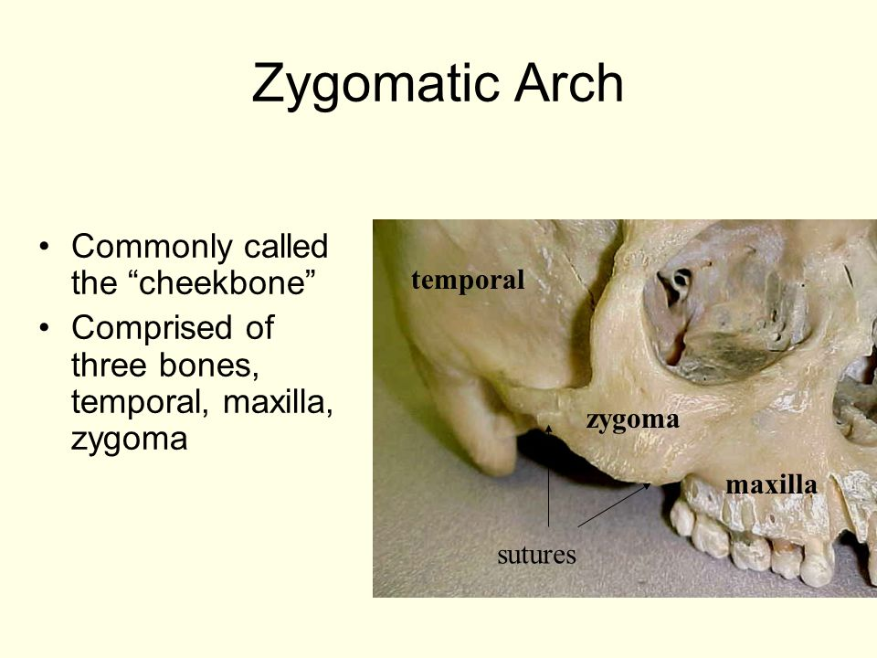 Zygomatic Arch Commonly called the cheekbone