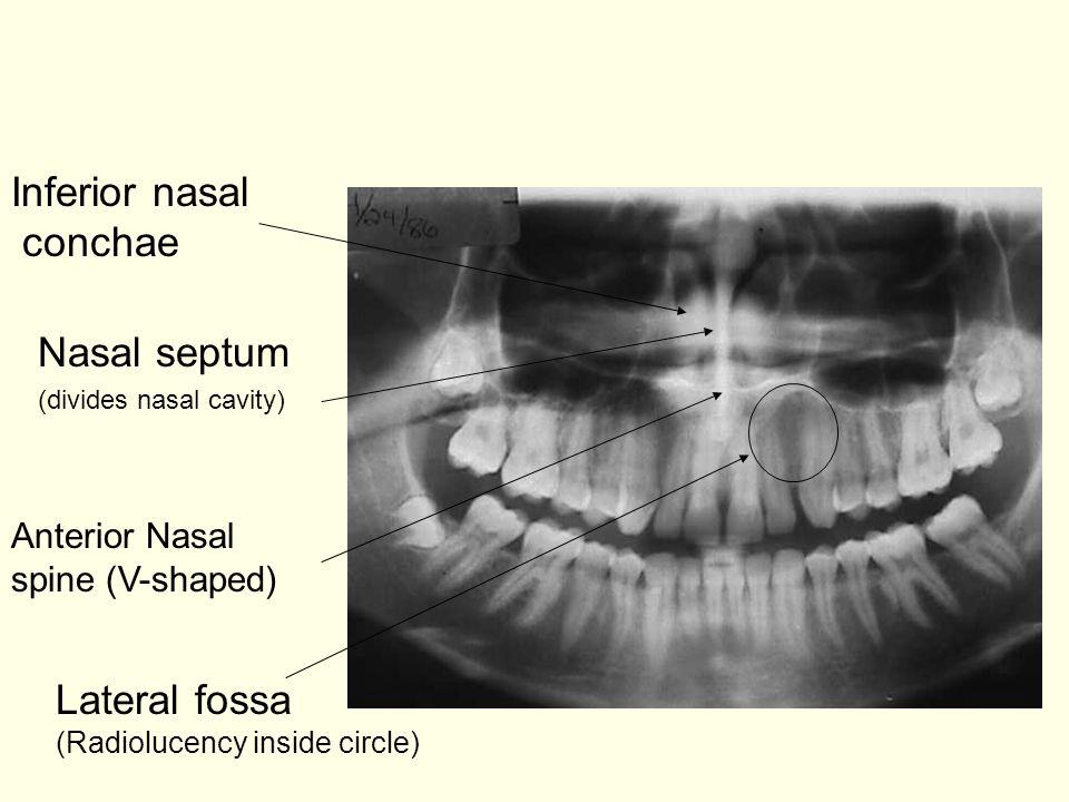 Inferior nasal conchae Nasal septum Lateral fossa