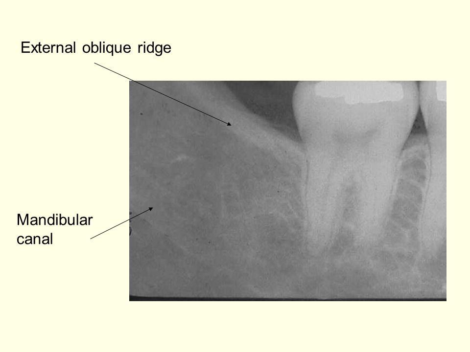 External oblique ridge