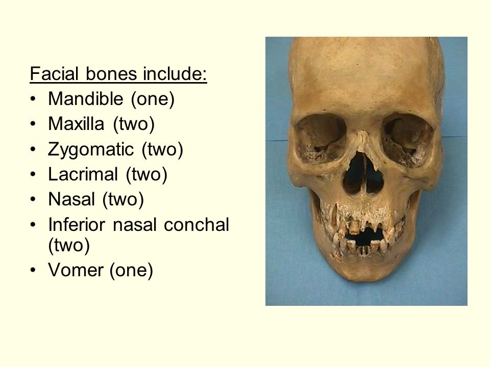 Facial bones include: Mandible (one) Maxilla (two) Zygomatic (two) Lacrimal (two) Nasal (two) Inferior nasal conchal (two)