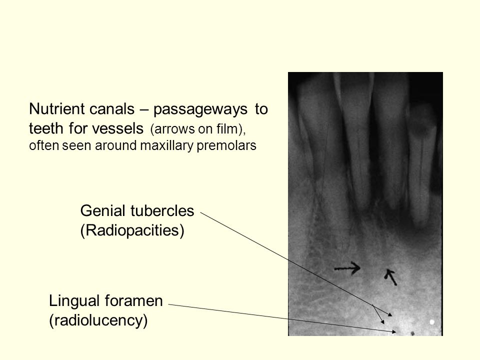 Nutrient canals – passageways to teeth for vessels (arrows on film),