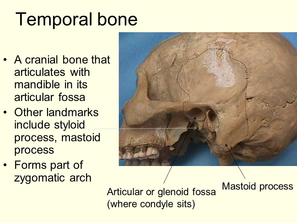 Temporal bone A cranial bone that articulates with mandible in its articular fossa. Other landmarks include styloid process, mastoid process.