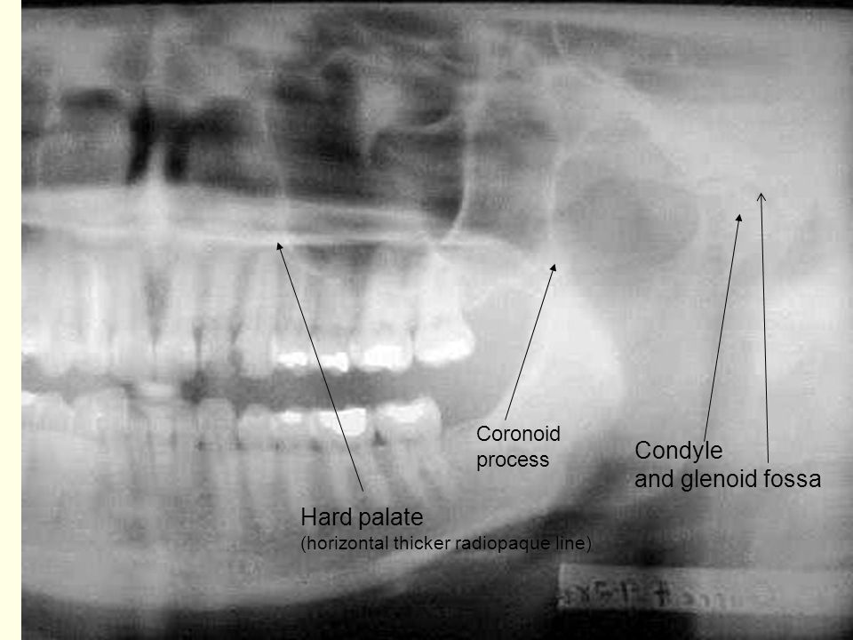 Condyle and glenoid fossa Hard palate Coronoid process