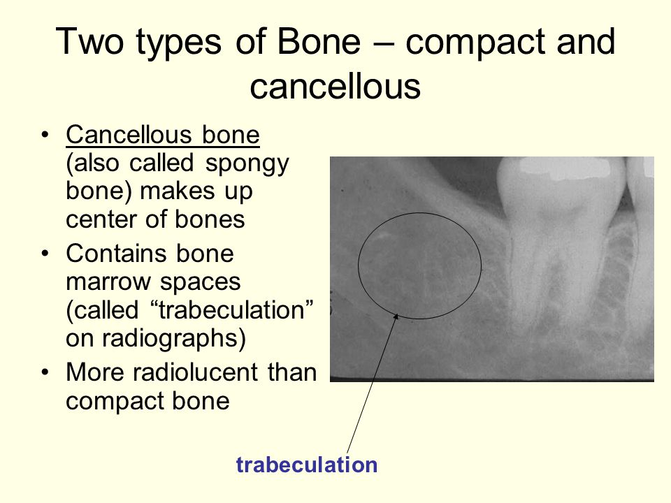 Two types of Bone – compact and cancellous
