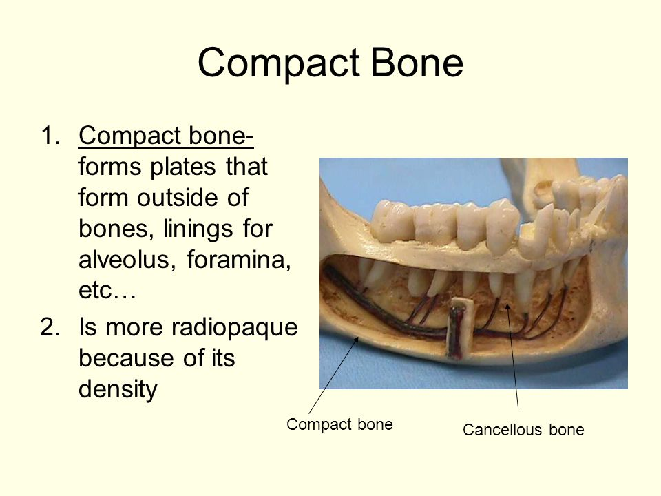 Compact Bone Compact bone- forms plates that form outside of bones, linings for alveolus, foramina, etc…