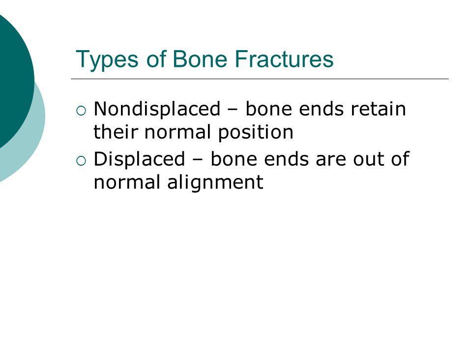 Types of Bone Fractures