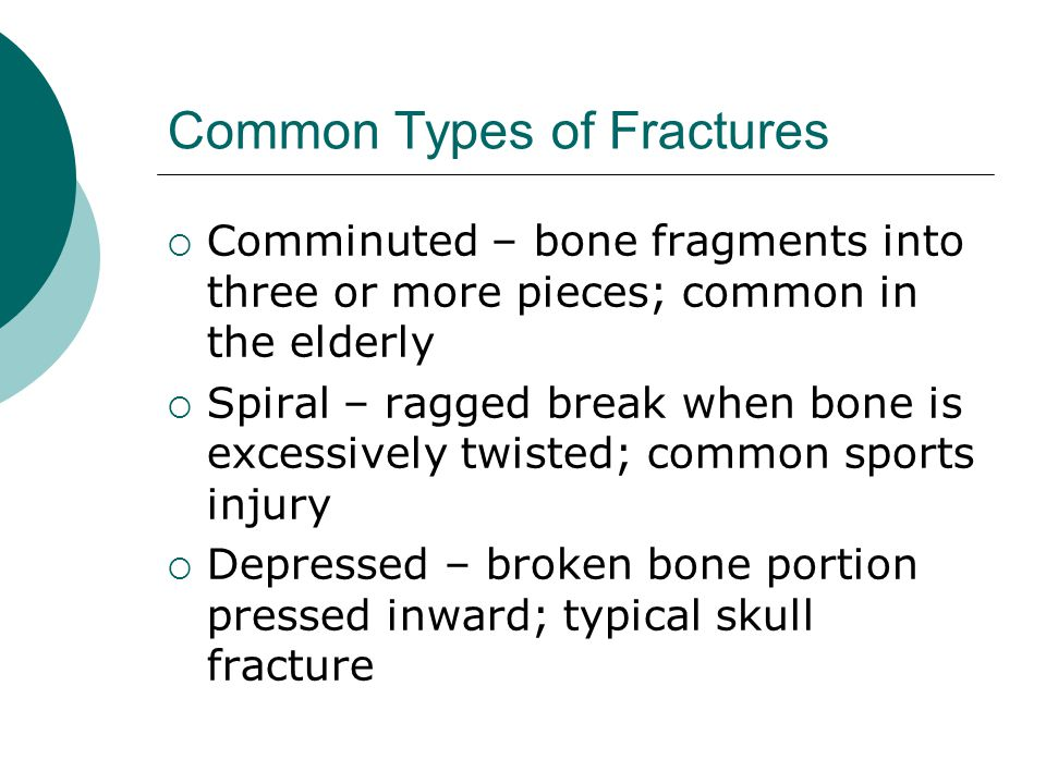 Common Types of Fractures