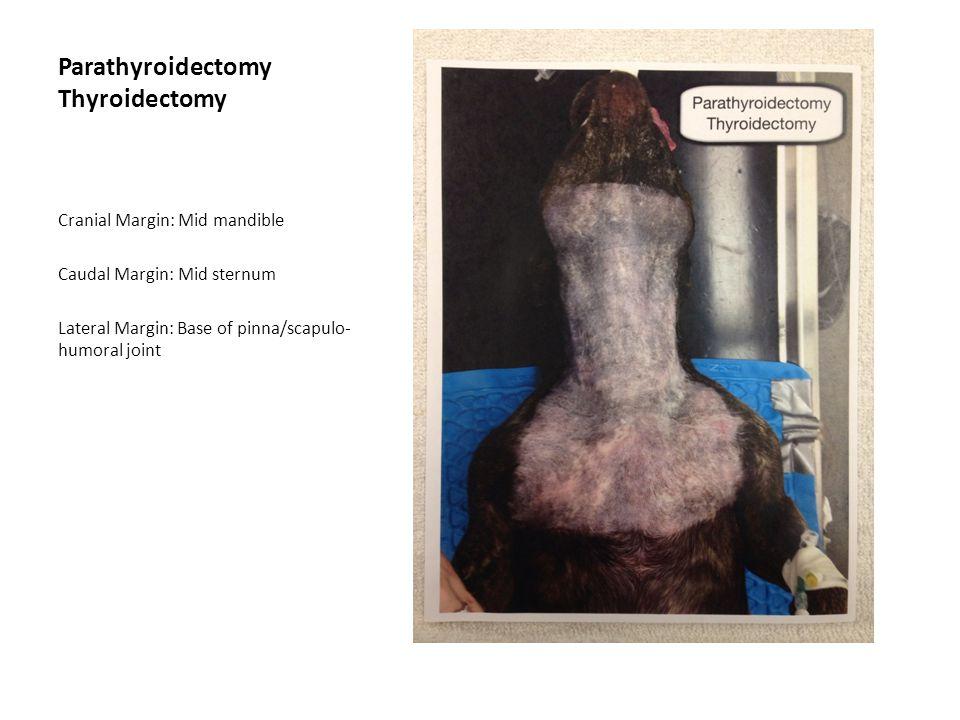 Parathyroidectomy Thyroidectomy