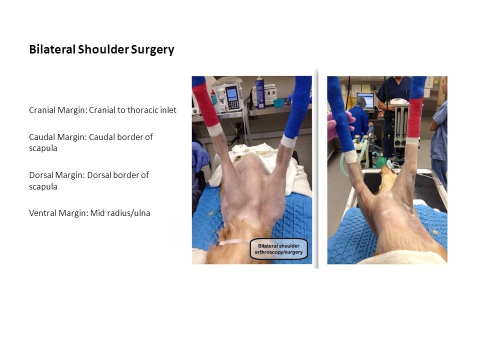 Bilateral Shoulder Surgery