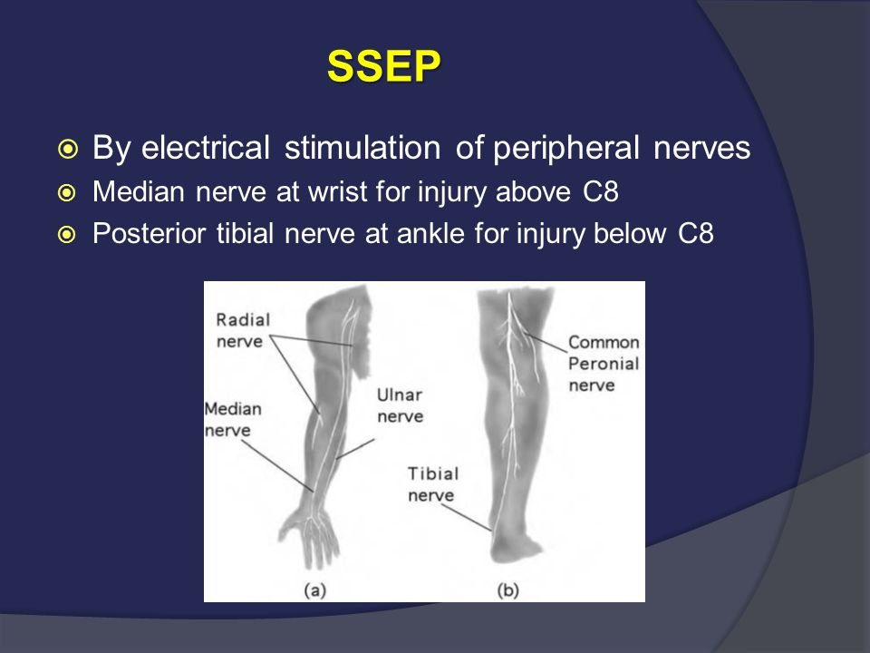 SSEP By electrical stimulation of peripheral nerves