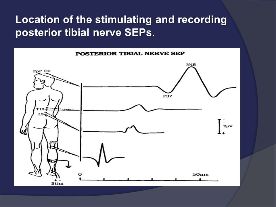 Location of the stimulating and recording posterior tibial nerve SEPs.