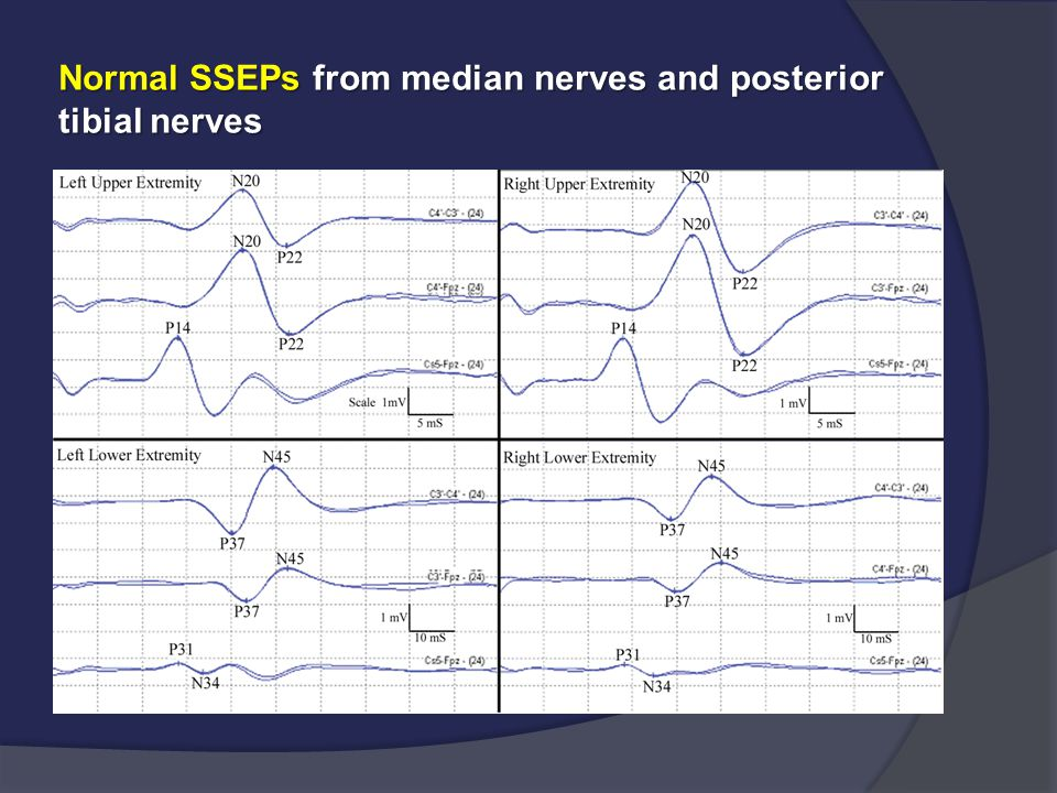 Normal SSEPs from median nerves and posterior tibial nerves