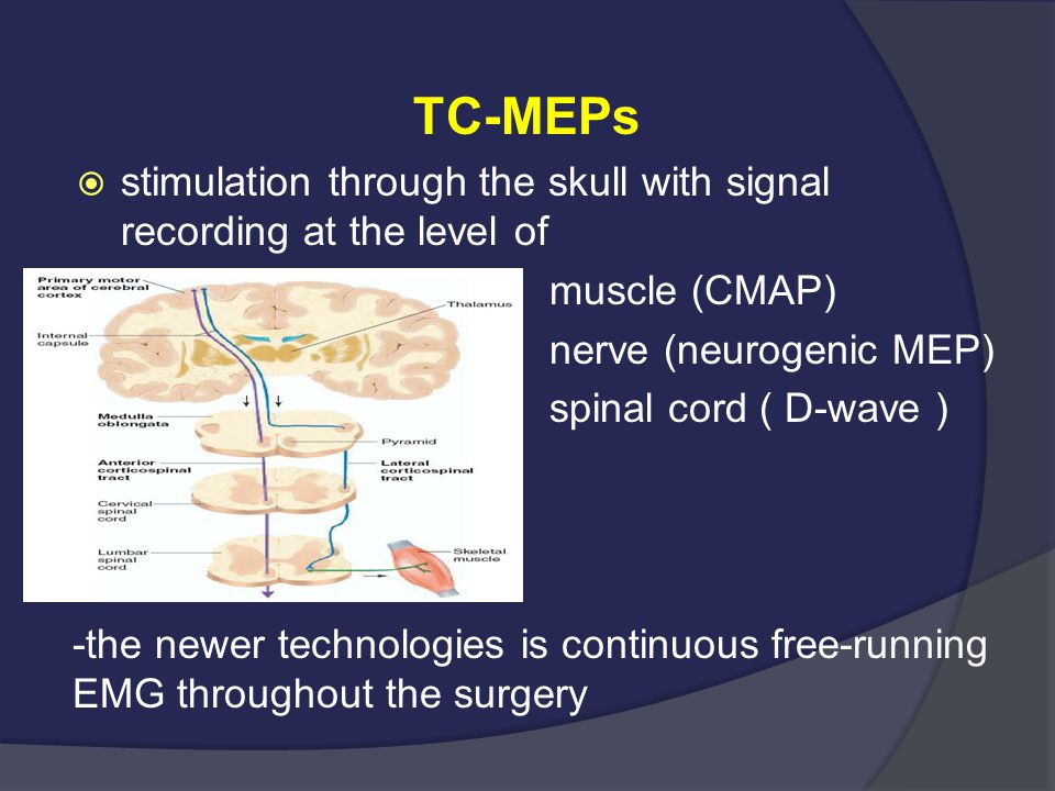 TC-MEPs stimulation through the skull with signal recording at the level of. muscle (CMAP) nerve (neurogenic MEP)