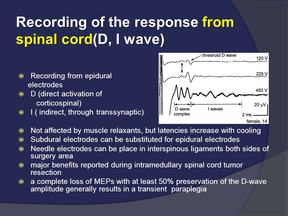 Recording of the response from spinal cord(D, I wave)