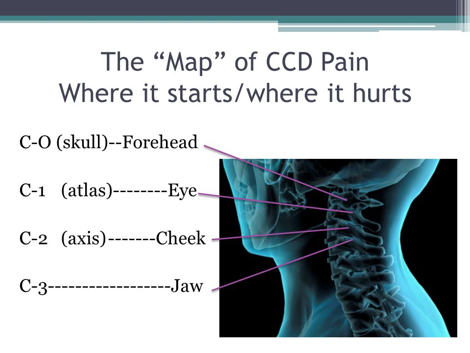 The Map of CCD Pain Where it starts/where it hurts