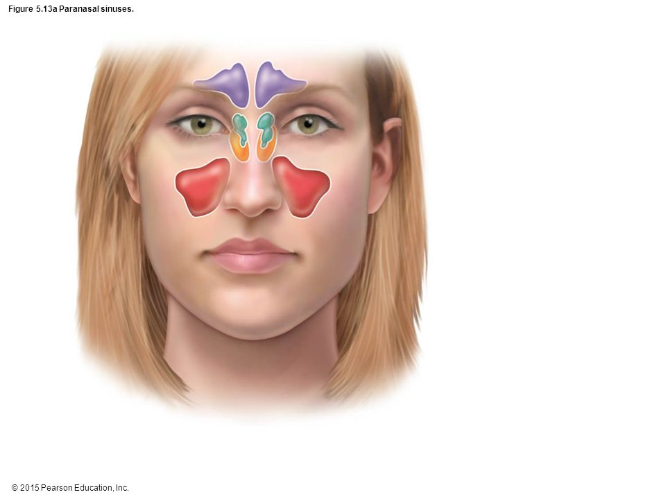 Figure 5.13a Paranasal sinuses.