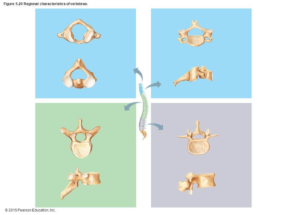 Figure 5.20 Regional characteristics of vertebrae.