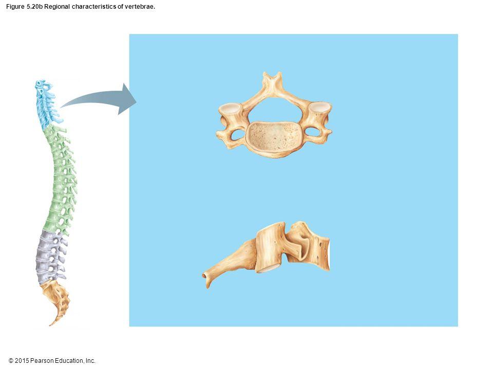 Figure 5.20b Regional characteristics of vertebrae.