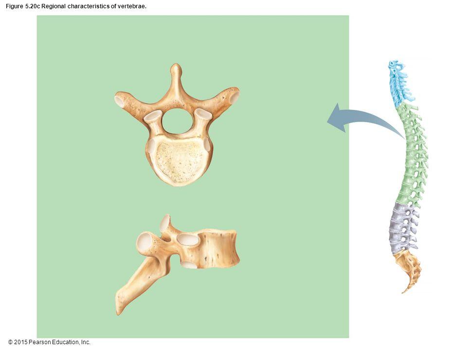 Figure 5.20c Regional characteristics of vertebrae.