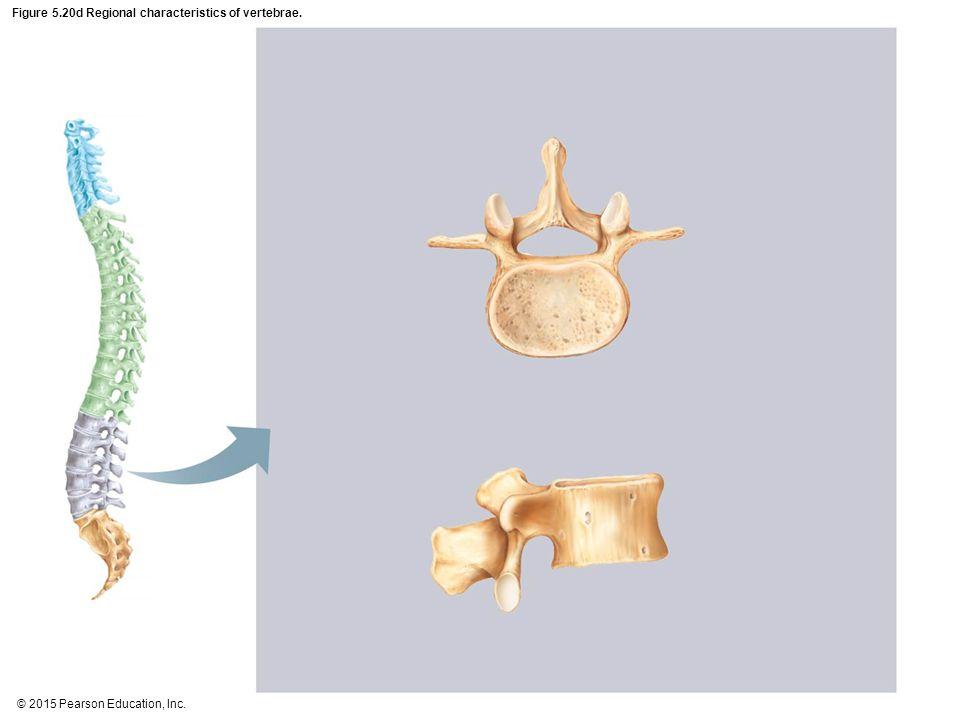 Figure 5.20d Regional characteristics of vertebrae.