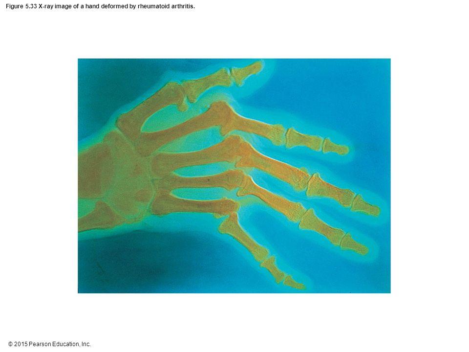 Figure 5.33 X-ray image of a hand deformed by rheumatoid arthritis.