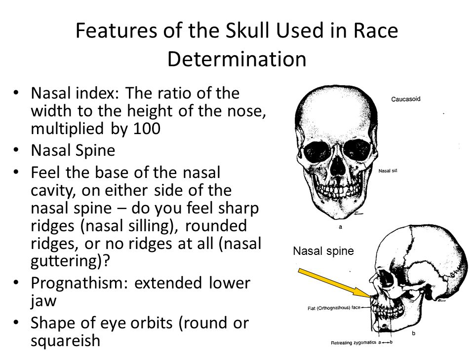 Features of the Skull Used in Race Determination