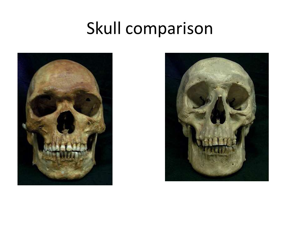 anthropology skull compare and contrast essay Ethnography essay ethnography essay buddhist ethnography essay  compare and contrast the endicotts' and dettwyler's ethnographies what are the objectives  anthropology is a science that attempts to look at other cultures and draw conclusions to questions that are raised while studying an anthropologist is someone who accepts.