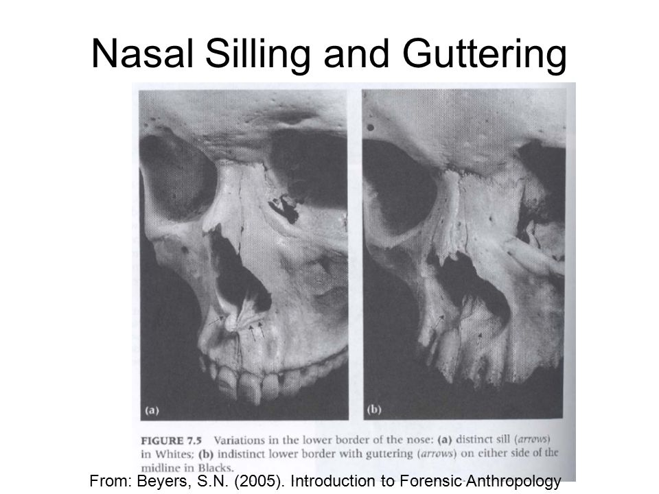 Nasal Silling and Guttering