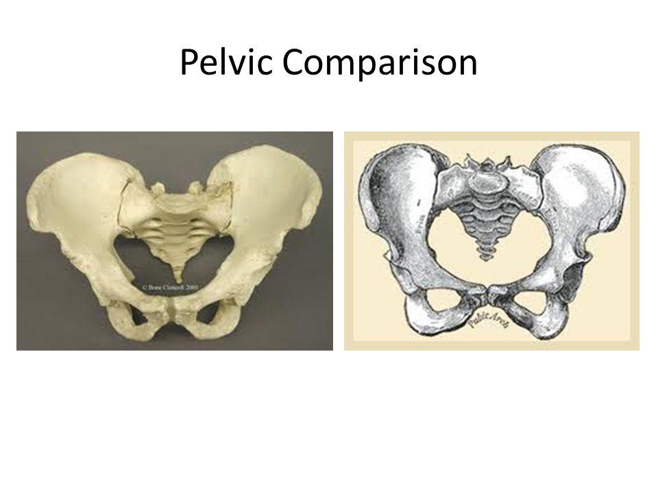 Pelvic Comparison