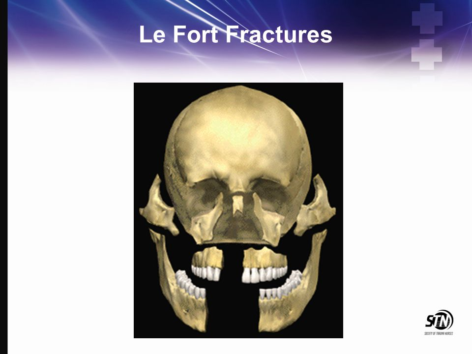 6_Maxillofacial and Ocular Injuries