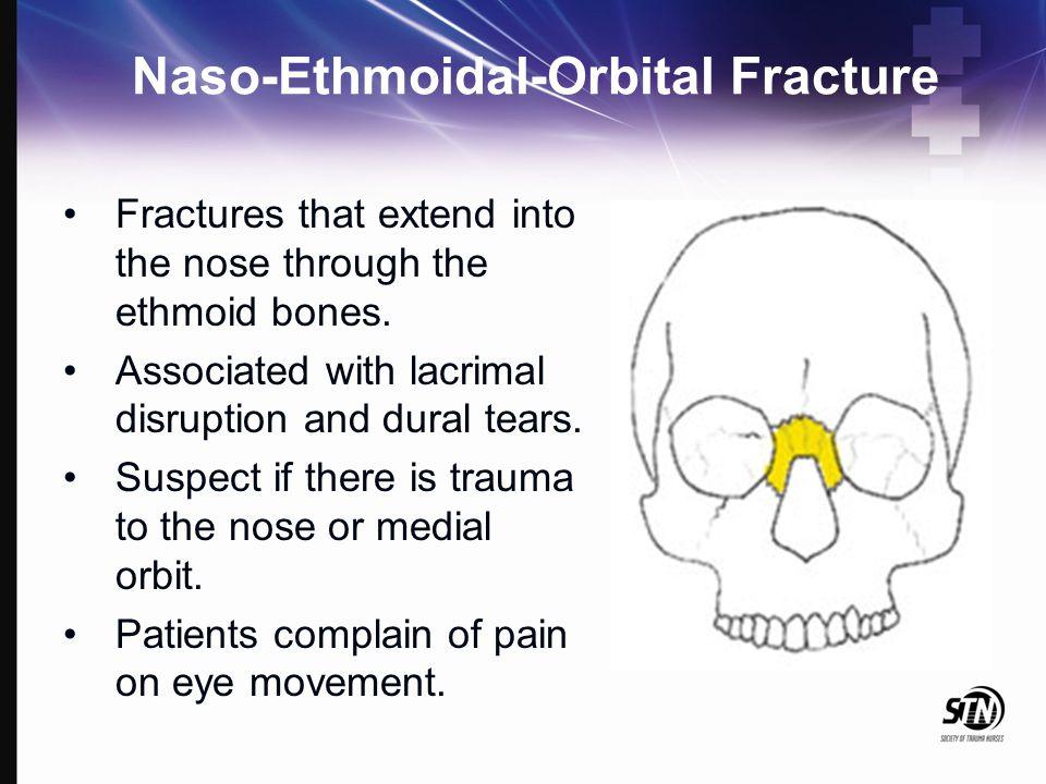 Naso-Ethmoidal-Orbital Fracture