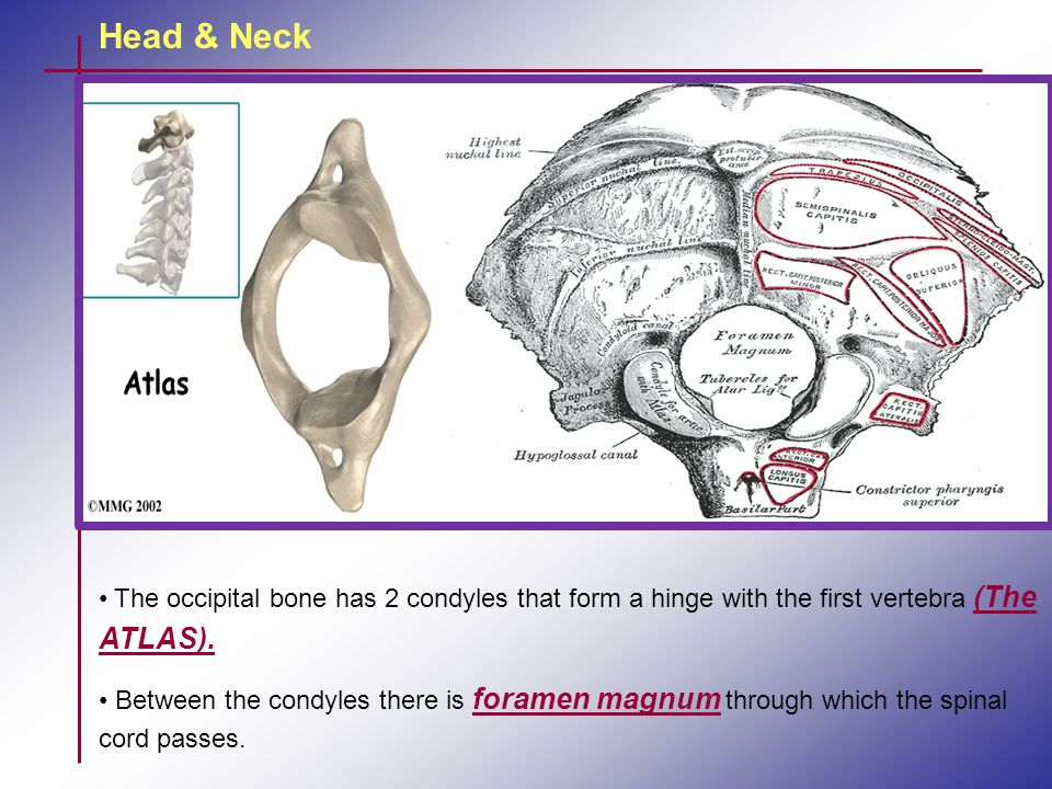 Head & Neck The occipital bone has 2 condyles that form a hinge with the first vertebra (The ATLAS).