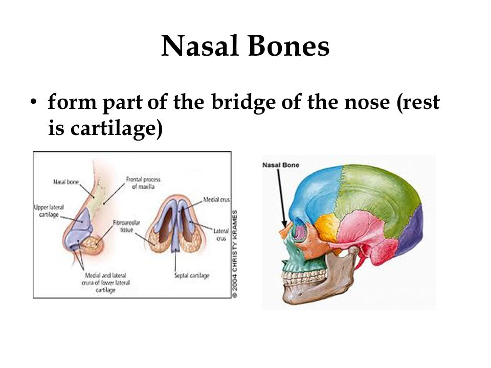 Nasal Bones form part of the bridge of the nose (rest is cartilage)