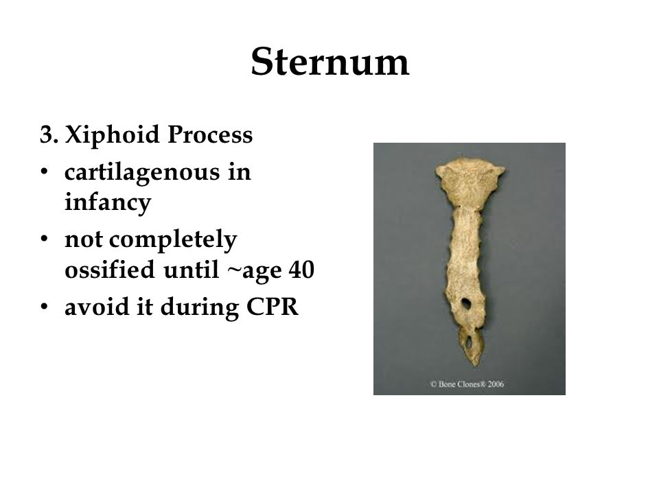 Sternum 3. Xiphoid Process cartilagenous in infancy