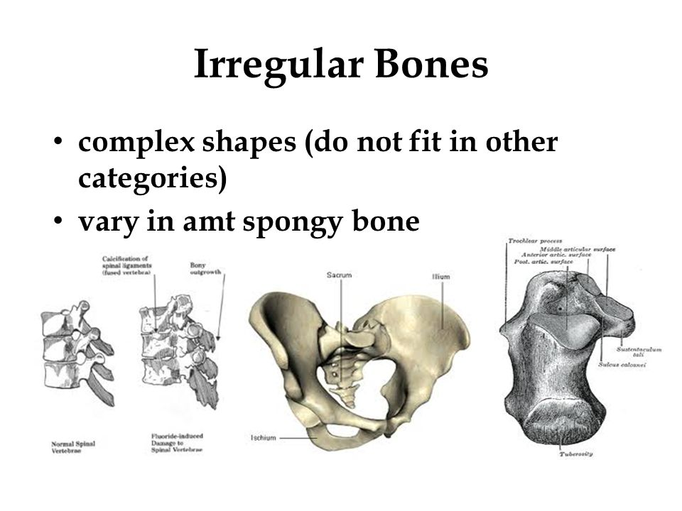 Irregular Bones complex shapes (do not fit in other categories)