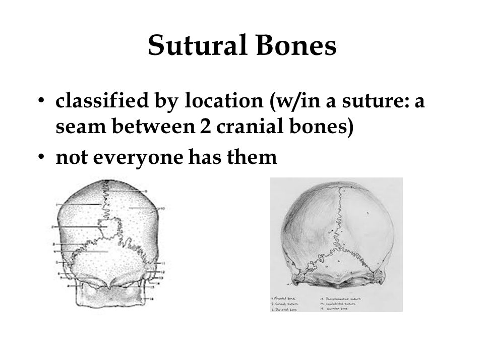 Sutural Bones classified by location (w/in a suture: a seam between 2 cranial bones) not everyone has them.