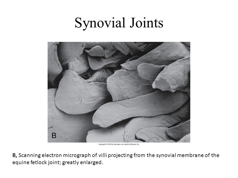 Synovial Joints B, Scanning electron micrograph of villi projecting from the synovial membrane of the equine fetlock joint; greatly enlarged.