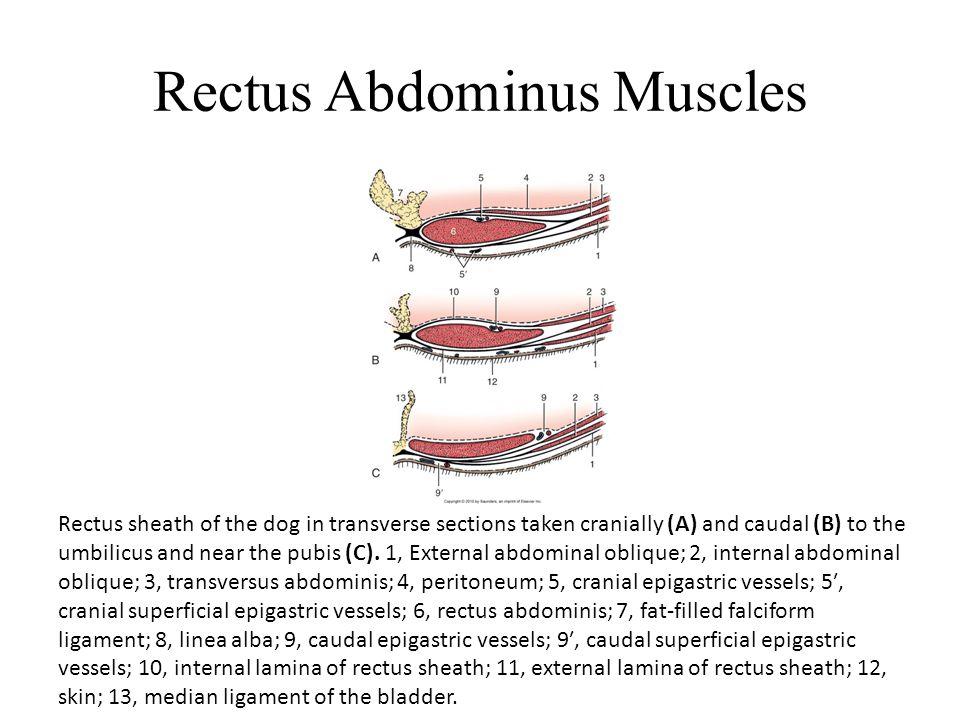 ... lamina of rectus sheath; 12, skin; 13, median ligament of the bladder