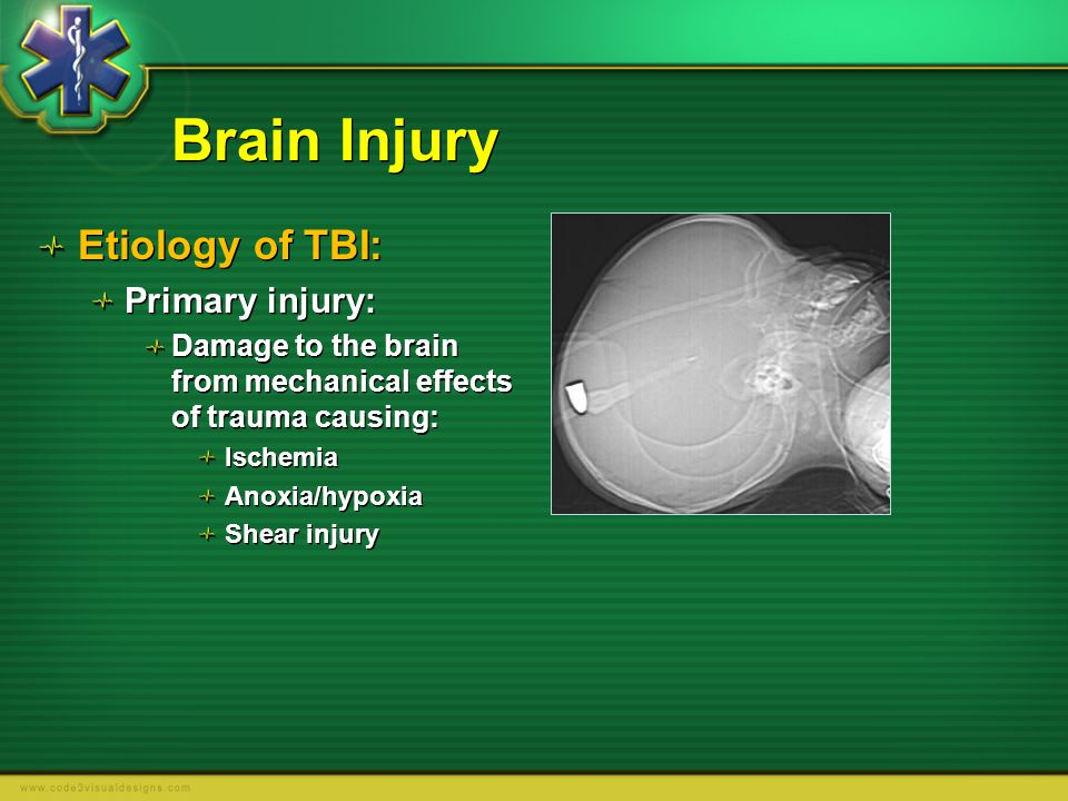 Brain Injury Etiology of TBI: Primary injury: