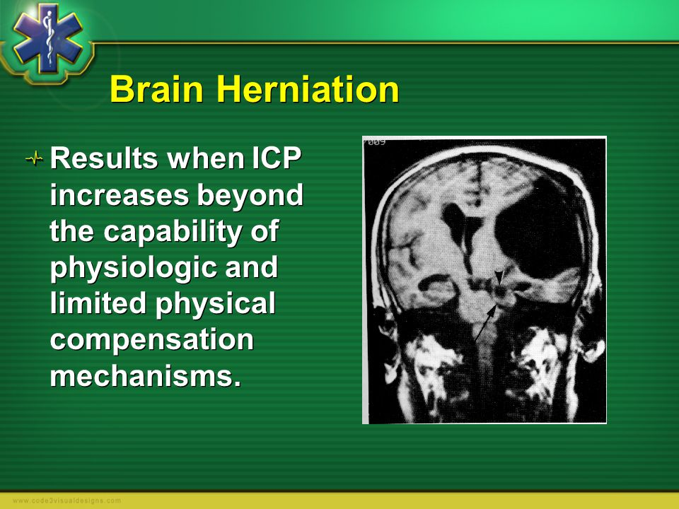 Brain Herniation Results when ICP increases beyond the capability of physiologic and limited physical compensation mechanisms.