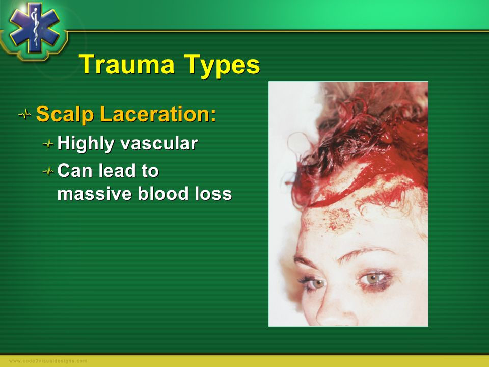 Trauma Types Scalp Laceration: Highly vascular