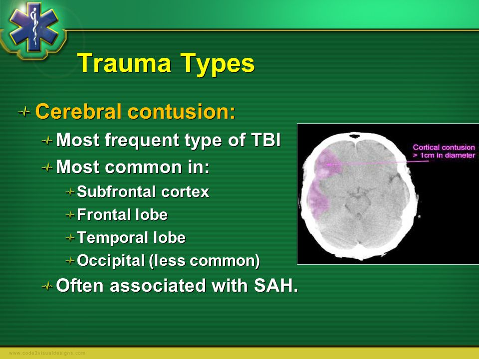Trauma Types Cerebral contusion: Most frequent type of TBI