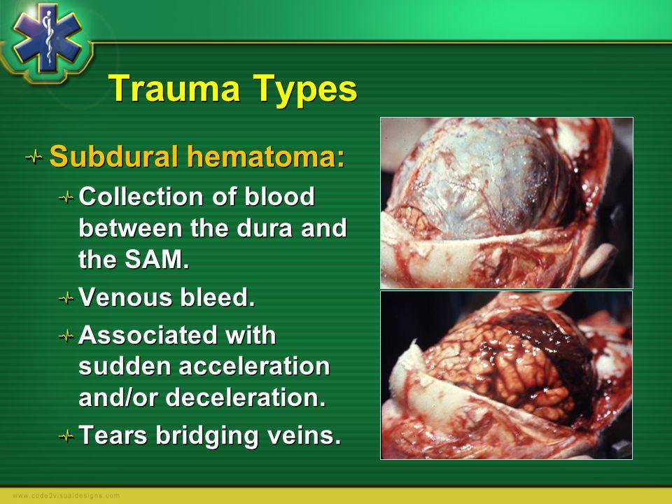 Trauma Types Subdural hematoma: