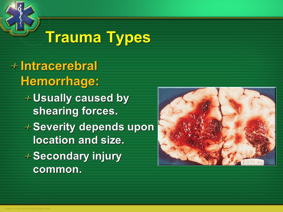 Trauma Types Intracerebral Hemorrhage: