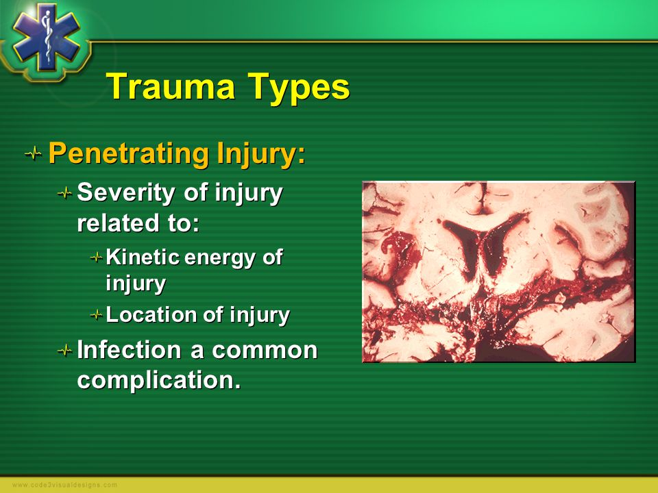 Trauma Types Penetrating Injury: Severity of injury related to:
