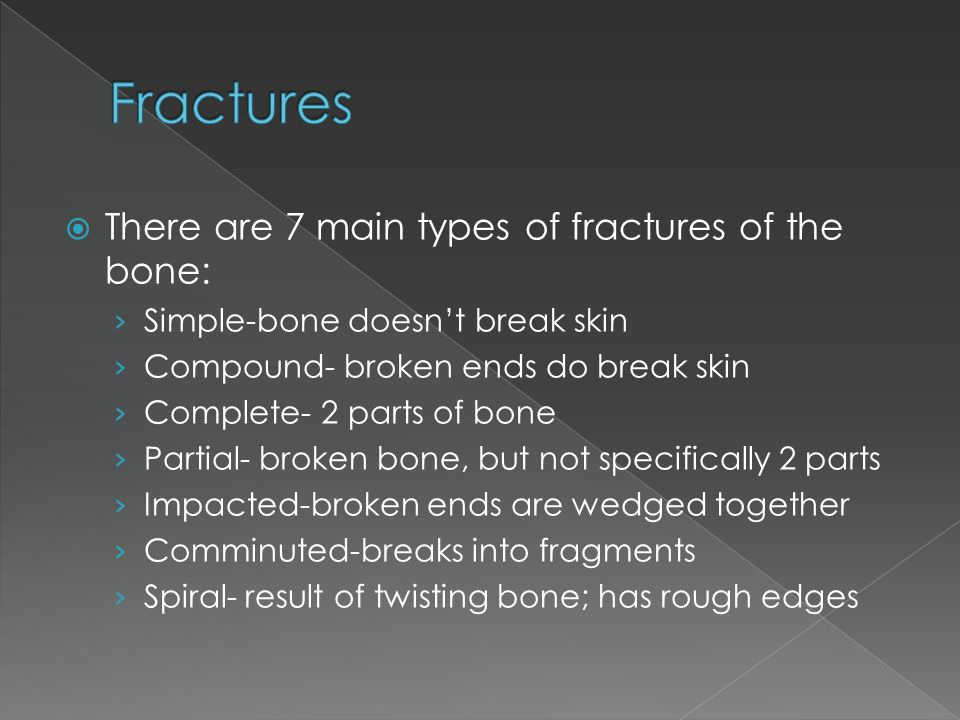 Fractures There are 7 main types of fractures of the bone: